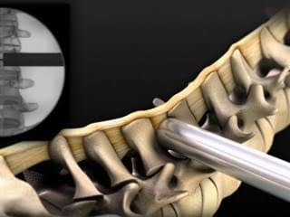 spinal_surgery_animation